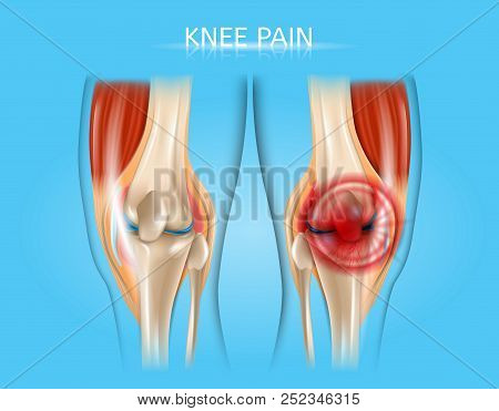 Knee Pain Realistic Vector Medical Scheme With Healthy And Inflamed Or Damaged Human Knee Joints Ana