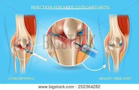 Injection For Knee Osteoarthritis Realistic Vector Medical Scheme. Medications Administration With S