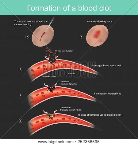 The wound from the sharp knife on skin Slightly bleeding, The body can respond to stop blood out flow from the capillaries, And anti-bacterial through the body. poster