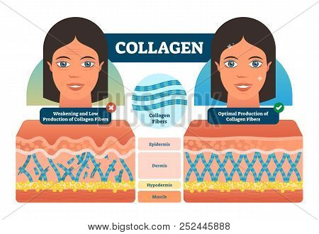 Collagen Vector Illustration. Medical And Anatomical Labeled Scheme With Fibers, Epidermis, Hypoderm