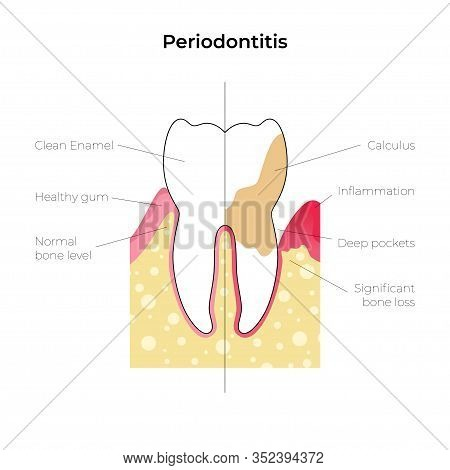 Vector Flat Isolated Illustration Of Periodontitis. Tooth Anatomy Infographics. Medical Banner Or Po