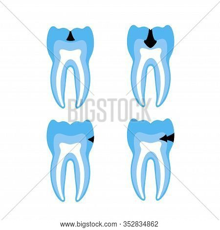 Vector Isolated Illustration Of Tooth With Caries. Stages Of Teeth Decay Development Medical Poster.