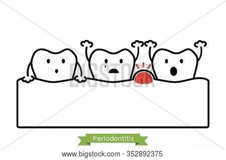 Periodontitis Or Gum Disease With Swell ( Gum And Tooth Is Swollen Because Inflammation ), Dental Pr