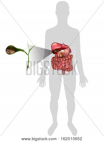 Gallstones Vector & Photo (Free Trial) | Bigstock