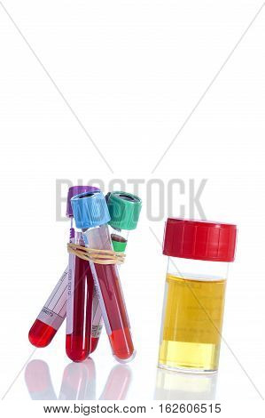Urine and blood sample on botte for examination