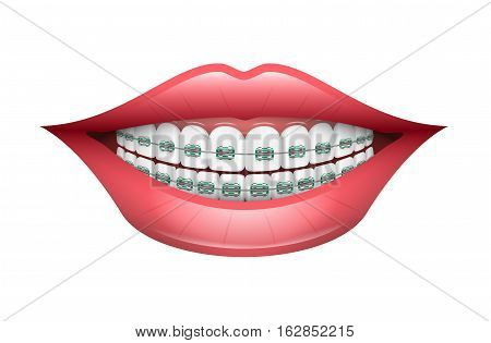 Vector Illustration of Dental Braces. Best for Dentistry, Orthodontics, Oral Care Concept.