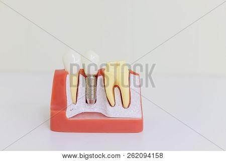 Dental Implant Model. Tooth Human Implant. Dental Concept. Human Teeth Or Dentures.implan Model Toot
