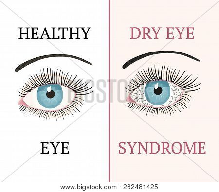 Dry Eye Syndrome. Eye Disease. Ophthalmology Flat Health Vector Illustration.