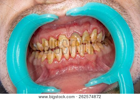 Human Teeth Closeup With Dental Plaque And Inflammation Of Gingivitis. Concept Of Brushing Teeth And