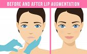 Woman makes procedure of beauty injection for lip augmentation. Lips before and after hyaluronic acid lip filler injection. Vector poster