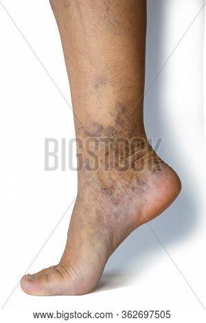 Varicose Veins On A Female Legs. Phlebology Problem. Womans Health