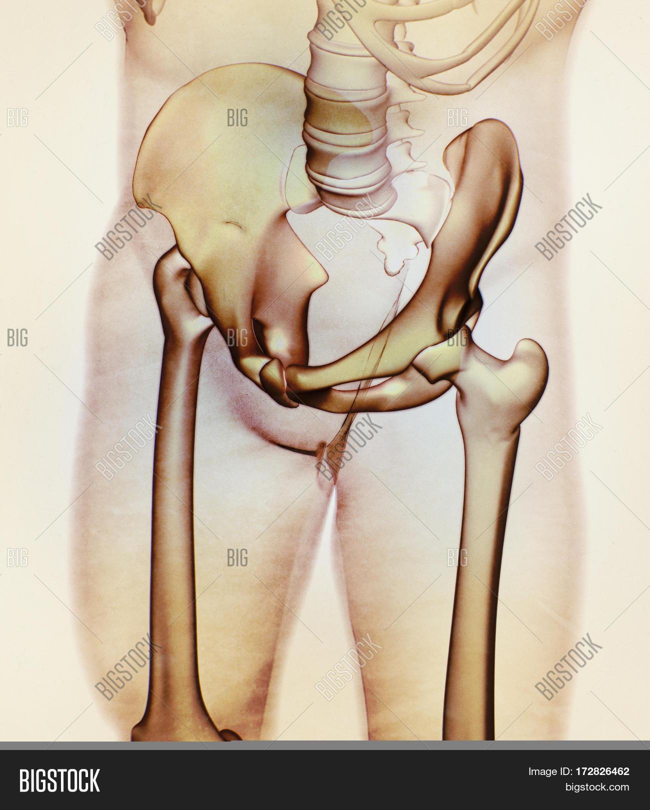 Ilium Bone, Hip Bone Image & Photo (Free Trial) | Bigstock