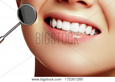 Woman's Smile. Healthy White Woman's Teeth And A Dentist Mouth Mirror Close-up. Dental Hygiene, Oral