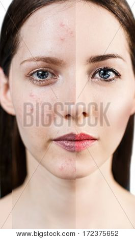 Woman with acne before and after treatment and make-up.