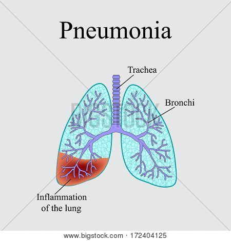 Pneumonia. The anatomical structure of the human lung. Vector illustration on a gray background.
