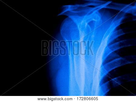 Shoulder Back Ribs Xray Scan