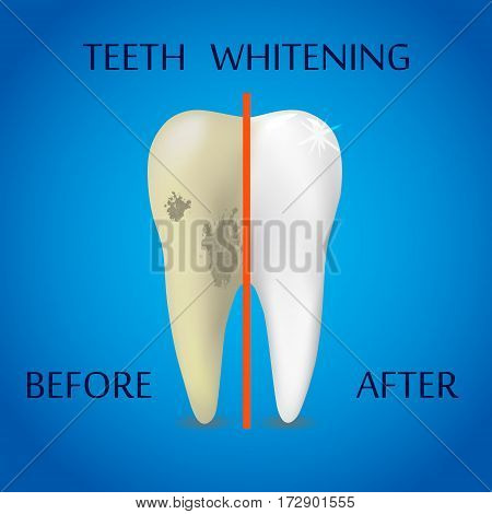 Teeth Whitening Icon on blue background Dentist Symbol. Dental white evolution