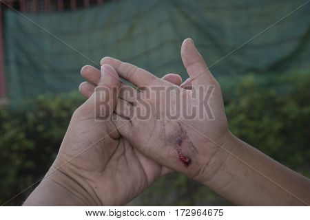 Infected wound on hand. Wounds caused by falling car