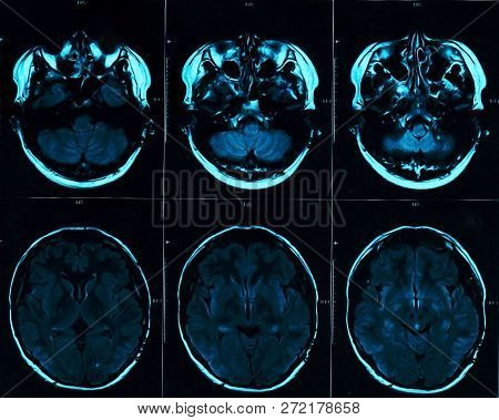 Magnetic Resonance Scan Of The Brain With Skull. Mri Head Scan On Dark Background Blue Color. X-ray