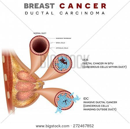 Breast Cancer Anatomy Illustration, Ductal Carcinoma Of The Breast, Detailed Medical Illustration. N