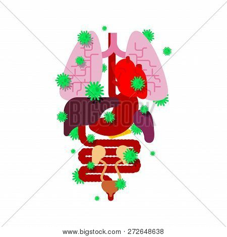 Sick Internal Organ. Viruses And Bacteria. Diseased Heart And Brain. Liver And Stomach. Esophagus An
