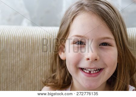 Little Cute Girl With First Lost Milk Tooth