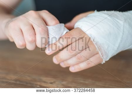 Broken Bone. A Man Washes A Broken Arm In Gypsum With A Napkin. Difficult Care For Injury