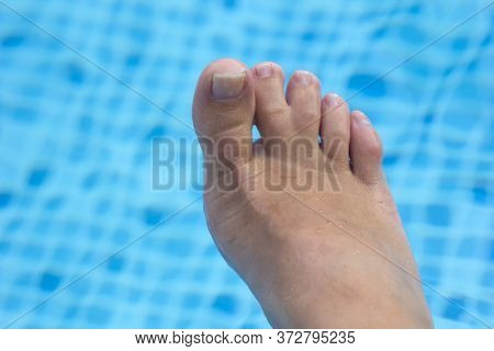 Webbed Toes, Woman Right Foot With Veins And Webbed Toes On Blue Pool Background. Genetic Disorders