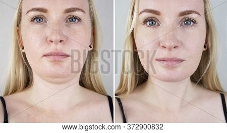 Second Chin Lift In Women. Photos Before And After Plastic Surgery, Mentoplasty Or Facebuilding. Chi