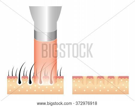 Hair Removal Laser Icon Step .laser Emits An Invisible Light Which Penetrates The Skin Without Damag