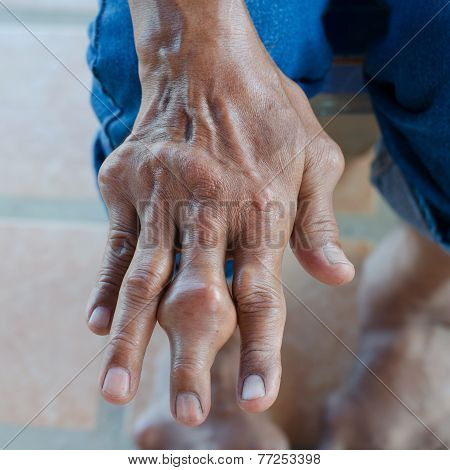 Fingers Of Patients With Gout.