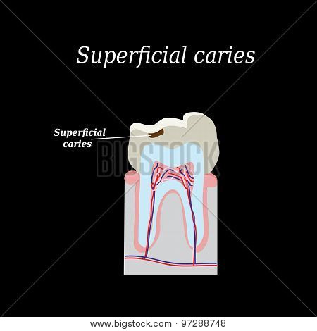 Home tooth caries. Vector illustration on a black background