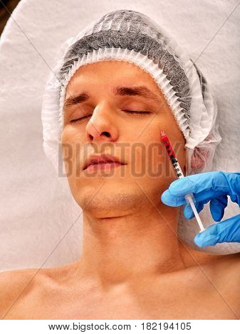 Filler injection for male face. Plastic aesthetic facial surgery in beauty clinic. Man giving anti-aging injections for pull up face contour . Doctor hand in medical gloves with syringe injects drug.