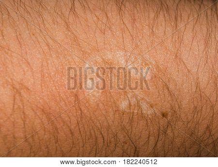 Healed burn on a hairy man's hand. Close-up. Horizontal photo.