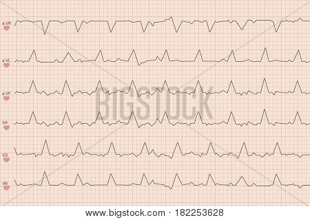Arrhythmia electrocardiogram sheet. medicine background. Vector illustration