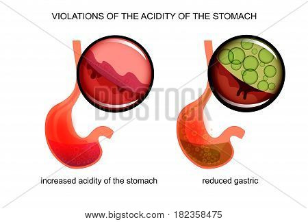 vector illustration of high and low acidity of the stomach