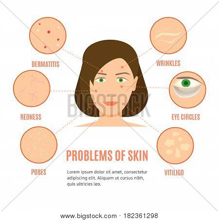 Girl Face Skincare Different Problems Card, Brochure or Poster Flat Design Style. Vector illustration