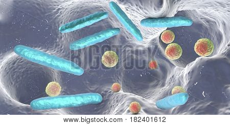 Bacteria inside dental cavity, dental decay. Tooth caries bacteria, 3D illustration poster