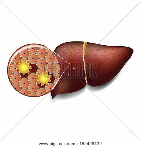 poster of Medical illustration of healthy liver cells attacked by toxins