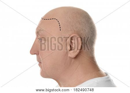 Hair loss concept. Bald senior man on white background