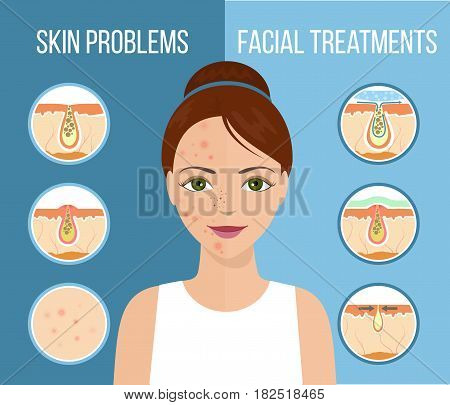 Girl with skin problems on her face such as acne pimples and clogged pores. Facial treatment infographic skin problems solution and skin care. Vector.