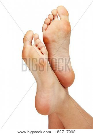 Female feet with calluses, isolated on white background