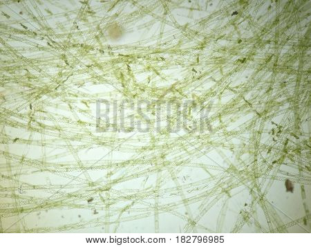 Filamentous algae are single algae cells that form long visible chains threads or filaments.