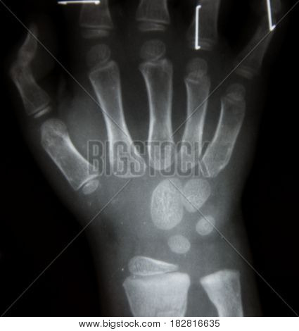 Film X-ray Both Hand Ap : Show Normal Human's