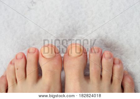 Beautiful feet. Pedicure. Hygiene of fingernails at the feet. Nail care at the feet.