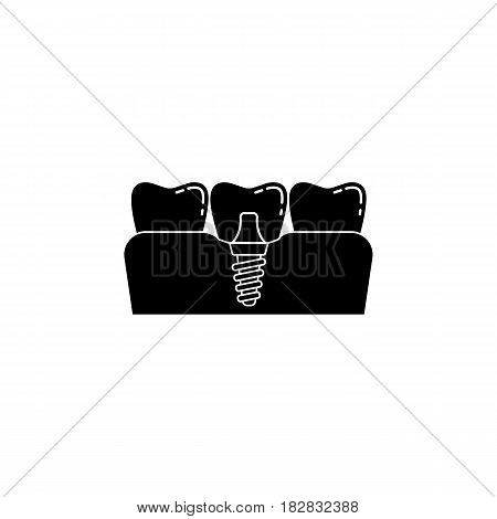Dental implant solid icon, Dental and medicine, vector graphics, a filled pattern on a white background, eps 10.
