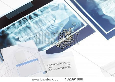 Orthodontic rings for braces and wires on top of closeup teeth xray