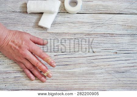Woman With A Burn Of The Skin And Fingers, Injuries With Boiling Water, An Accident At Home, Careles