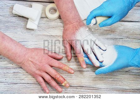The Doctor Puts A Bandage With The Medicine On The Burn Of The Fingers Of The Womans Hand, An Accide