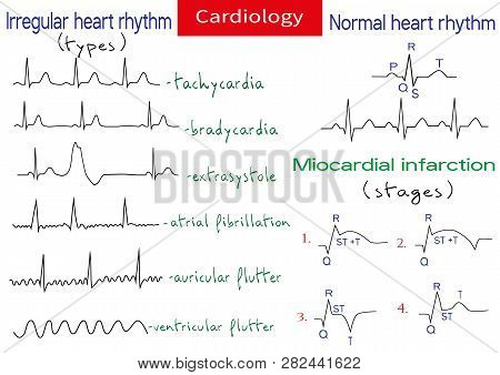 Normal And Pathological Ecg Collection. Shematic Vector Illustration Of Different Types Of Irregular